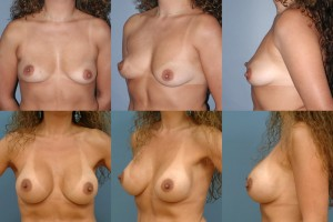 breast-augmentation-tampa
