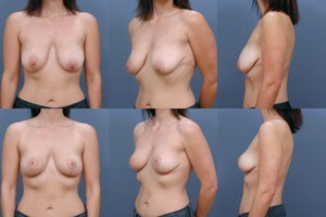 breast-lift-gallery