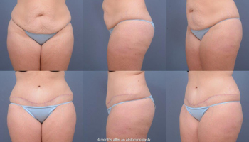 Abdominoplasty Patient 11