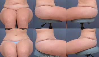 Abdominoplasty Patient 11b