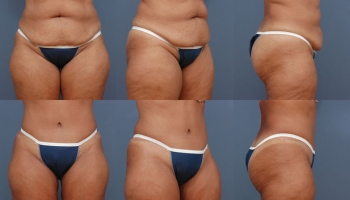 Abdominoplasty Patient 10b
