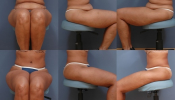 Abdominoplasty Patient 10