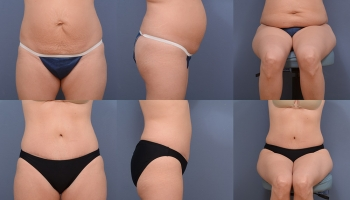 Abdominoplasty Patient 7