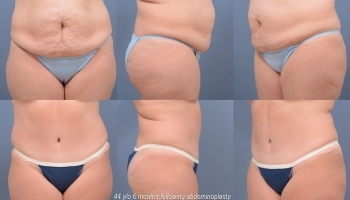 Abdominoplasty Patient 8