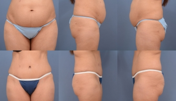 Abdominoplasty Patient 9