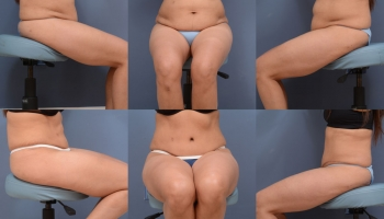 Abdominoplasty Patient 9b