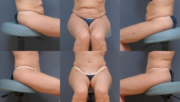 Abdominoplasty Patient 1