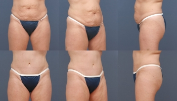Abdominoplasty Patient 1b