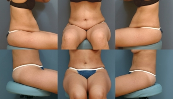 Abdominoplasty Patient 2
