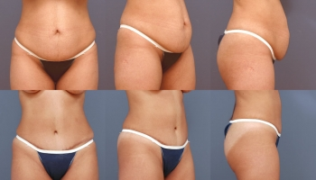 Abdominoplasty Patient 2b