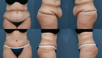 Abdominoplasty Patient 5