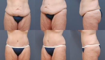 Abdominoplasty Patient 6