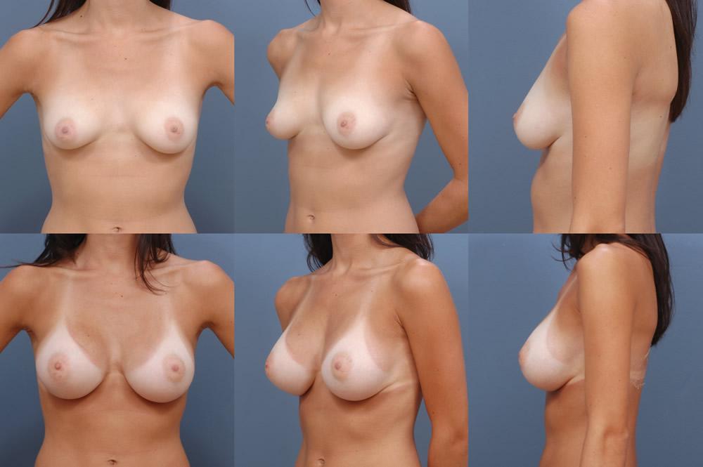 Plus size breast lift tape
