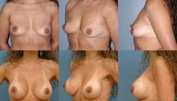 Breast Augmentation Patient 6
