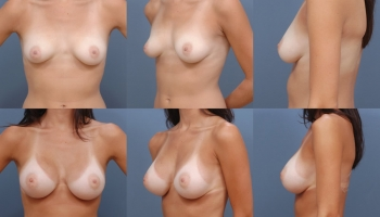 Breast Augmentation Patient 7