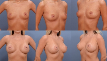 Breast Augmentation Patient 9