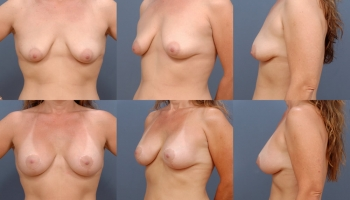 Breast Lift with Augmentation Patient 1