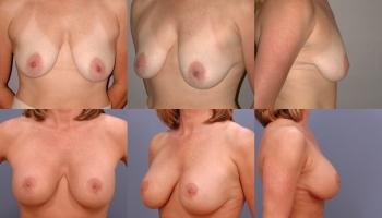 Breast Lift Patient 5