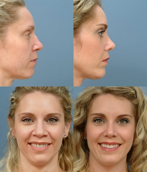 Chin Advancement 1