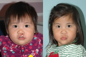 Cleft Lip Patient 12