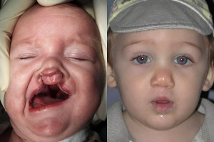 Cleft Lip Patient 1