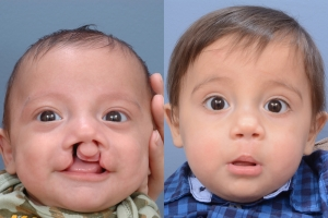 Cleft Lip Patient 10