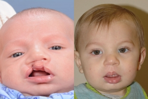 Cleft Lip Patient 13