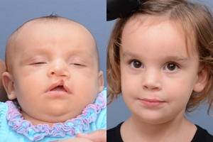 Cleft Lip Patient 14