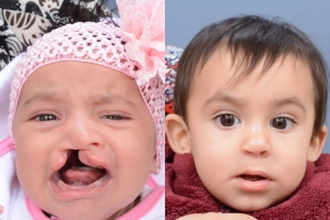 Cleft Lip Patient 15