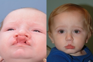 Cleft Lip Patient 18