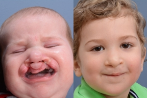 Cleft Lip Patient 19