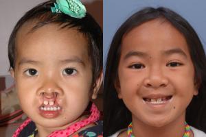 Cleft Lip Patient 2