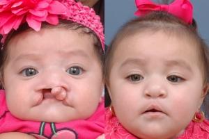 Cleft Lip Patient 4