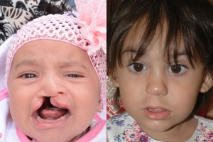 Cleft Lip Patient 21