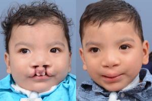 Cleft Lip Patient 23