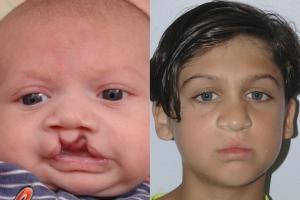 Cleft Lip Patient 24