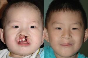Cleft Lip Patient 26