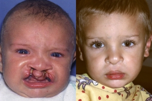 Cleft Lip Patient 3