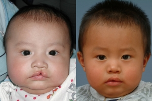 Cleft Lip Patient 4