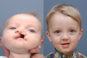 Cleft Lip Patient 5