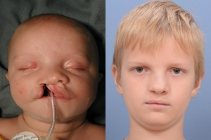 Cleft Lip Patient 6