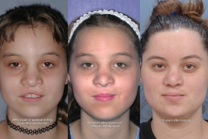 Cleft Lip Patient 8