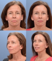 Facelift Patient