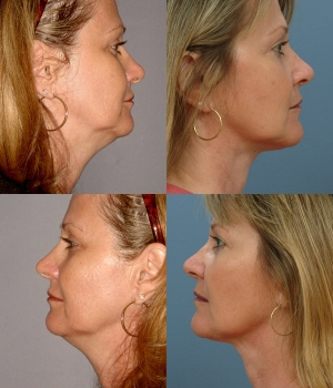 Neck Liposuction 2