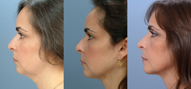 Neck Liposuction 3