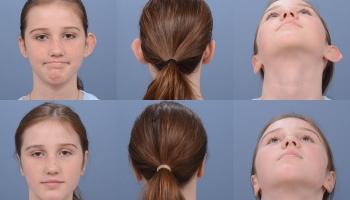 Ear Surgery 7