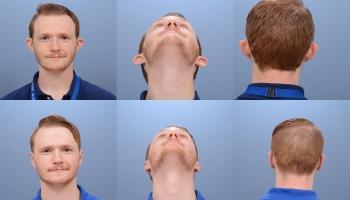 Ear Surgery 5