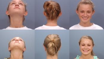 Ear Surgery 1