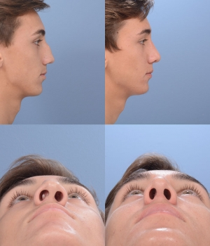 Rhinoplasty Patient 7