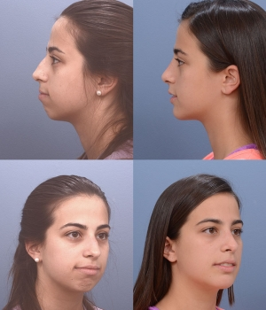 Rhinoplasty Patient 4
